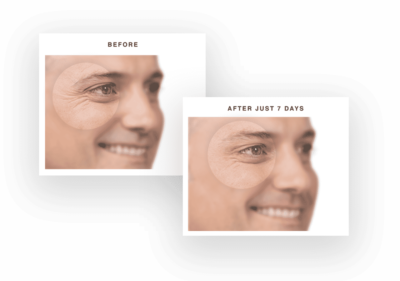 When to Choose Botox