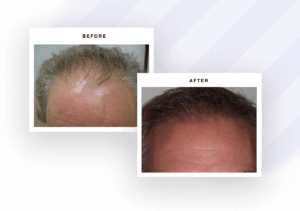 Bubolo Hair restoration results