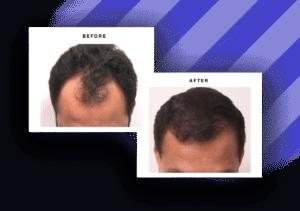 Hair transplant before and after Atlanta metro