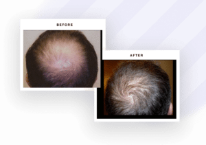 Hair restoration results pictures