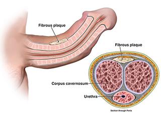Peyronies disease, curved penis