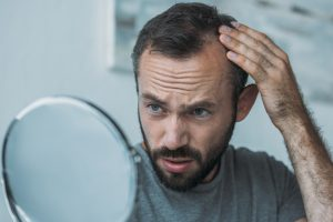 Man Hairloss Baldness