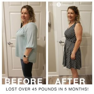 before and after medical weight loss results