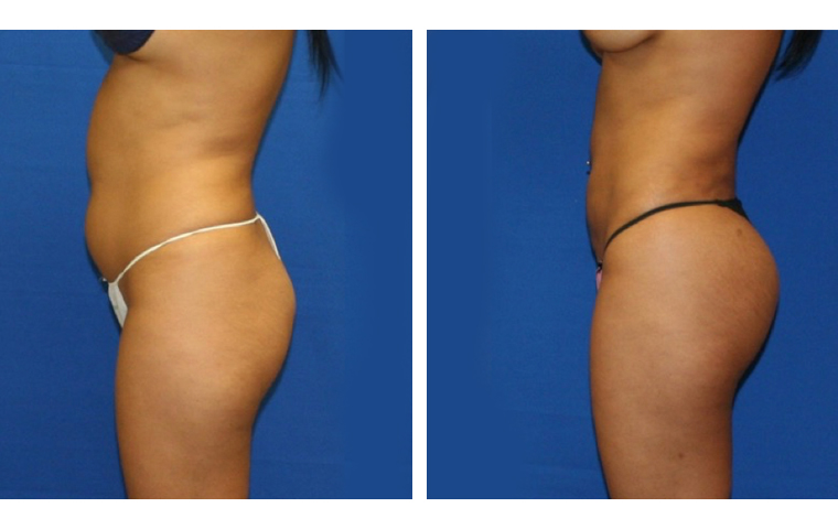 Abdominal sculpting and buttock transfer
