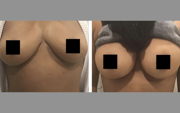 Natural fat transfer to breasts