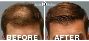 atlanta neograft hair transplant