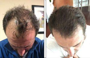 atlanta hair transplant
